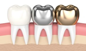 Dental Crowns Richmond Hill