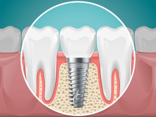 stomatology-illustrations-dental-implants-healthy-teeth-vector-health-tooth-implant-stomatology-dentistry-installation-fixture_80590-2811